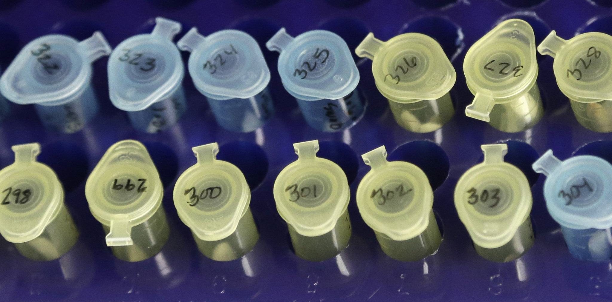 Vials of evidence in a sexual assault case are labeled in Houston on April 2, 2015.